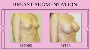 Before and After Brest Augmentation