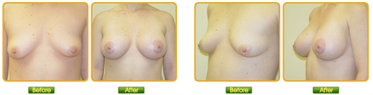 Before and After Breast Lift Photos