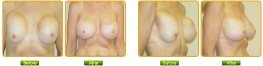 View Breast Revision Before & After Photos