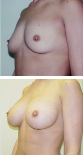 Breast Augmentation Patient of Dr. Straka