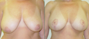 Straka Breast Lift Patient Before and After