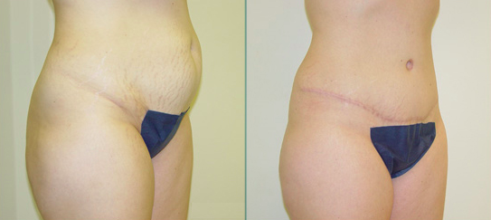 Straka Liposuction Patient
