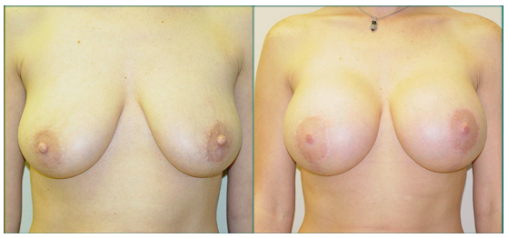 Straka Breast Lift with moderate profile 420 cc implants