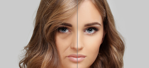 How Facial Injectables Can Revitalize Your Appearance - Feature Image