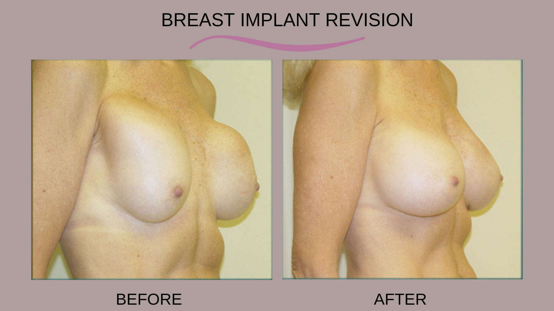 Breast Implant Revision Before and After Photos