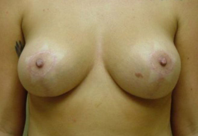 patient after breast implant removal